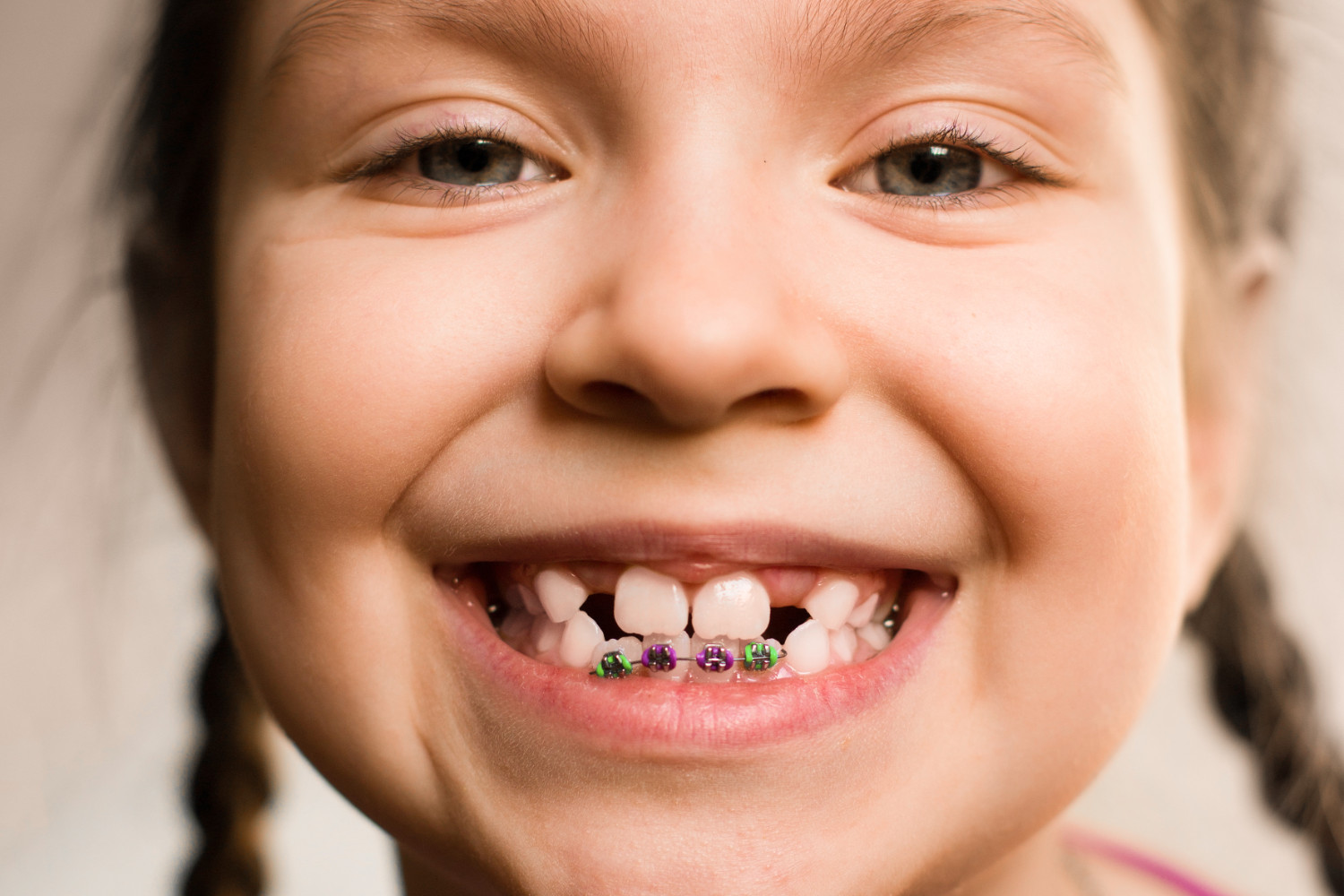 young girl with bottom braces